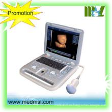 MSLCU18-2015 Nueva y mejor máquina de ultrasonido portátil 3D y 4D usada en humanos y veterinarios