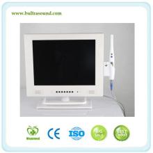Mam958 15 Inch Multifunction WiFi Intra Oral Camera