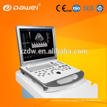 DW-C60 portable doppler ultrasound machine&vascular doppler