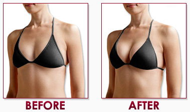 Hyaluronic Acid Breast Augmentation