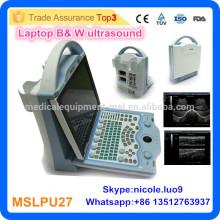 Medizinische Ausrüstung tragbare Ultraschall Maschine Preis / Ultraschall Scanner Preis MSLPU27i