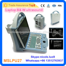 2016 Latest MSLPU27-I Laptop Style Portable Ultrasound Scanner Low Price Portable Ultrasound Machine/mini Laptop Ultrasound Scan