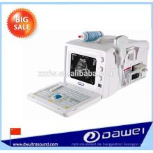 B-Modus tragbare Ultraschallgeräte zum Verkauf & Preis Ultraschall-Scanner
