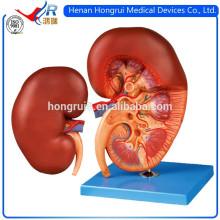 ISO Anatomisches menschliches Nierenmodell