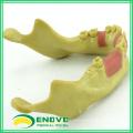 IMPLANT08 (12619) Modèle de formation dentaire d'implant oral pour les implants dentaires manquants