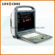 Sonoscape S2 Smart Portable Color Doppler Ultrasound Systems