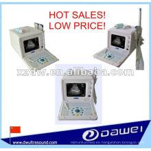 escáner de ultrasonido transvaginal portátil y escáner de ultrasonido portátil médica