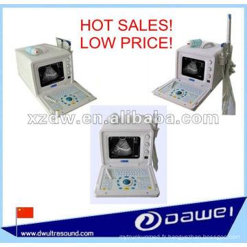 scanner échographique transvaginal portable et scanner médical à ultrasons portable