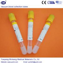 Tubes de collecte de sang sous vide Sst Tube (ENK-CXG-022)