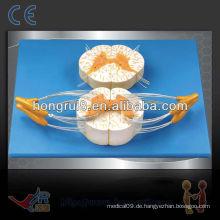 ISO Medulla Spinalis (Wirbelsäule) Modell