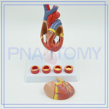 PNT-0401 Modelo anatómico del corazón del equipamiento médico