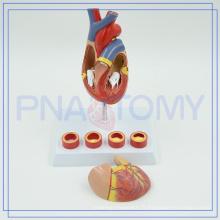 PNT-0401 Modèle anatomique cardiaque de matériel médical