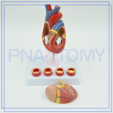 PNT-0401 Medical equipment heart anatomical model