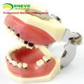 Modèle des maladies parodontales chez les adultes f / Traiter les maladies parodontales 12610