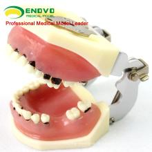 VERKAUF 12610 schwere Erkrankung Kiefer Modell für Parodontalchirurgie Training