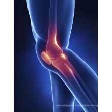 (Chondroitin Sulfate) - Arthritis Chondroitin Sulfate