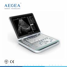 populäre AG-BU007 15-Zoll-TFT-Bildschirm Krankenhaus tragbare Doppler-Ultraschall-Maschine
