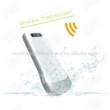 MSLPU31-I Factory price usb wireless ultrasound machine