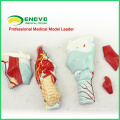 THROAT01(12505) Life-size Sectioned Larynx internal Structures Anatomical Model, 2 Times Enlarged