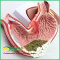 STOMACH04(12537) модель человеческого желудка, желудочные заболевания модель для медицинской науки
