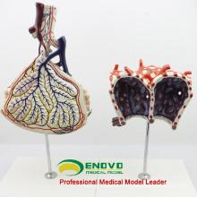 LUNG07 (12504) Modelo anatómico humano Lóbulo y alveolo de pulmón, Anatomía Modelos> Respiratorio