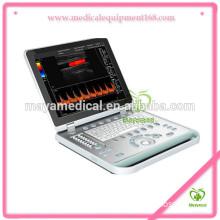A024 Medical Notebook Portable Color Doppler Ultrasound Scanner