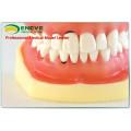 EN-L3 Removable Dental Soft Peridontal Teeth Model for Training