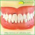 EN-L3 entfernbares zahnmedizinisches weiches peridontales Zahn-Modell für Training