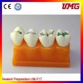 Dental Laboratory Products Dental Education Teeth Model Um-F17