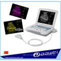 équipement médical d'ultrason d'ordinateur portable et scanner diagnostique portatif d'ultrason
