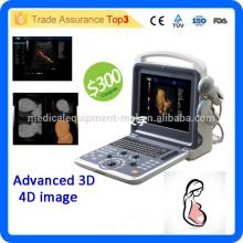2016 Neueste Marke MSLCU28I Advanced 4D Farbe Doppler Ultraschall Maschine / 4D Ultraschall für die Schwangerschaft
