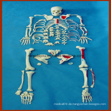 Life-Size Human Disarticulated Skeleton Modell mit gemalten Muskeln