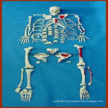 Modelo de esqueleto humano desarticulado de tamanho natural com músculos pintados