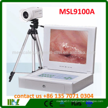 MSL9100A Cheapest Made in China Protable Video Colposcope