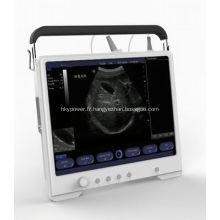 Prix de machine d'ultrason numérique de scanner portatif d'ultrasons