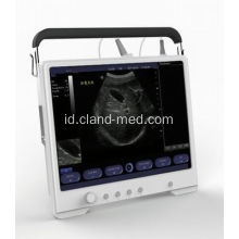 Portable Ultrasound Scanner Digital Ultrasound Machine Harga