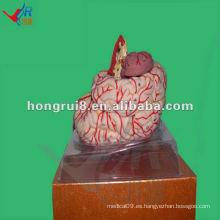 Modelo avanzado de la arteria cerebral de la ISO, modelo de la anatomía del cerebro humano