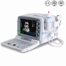 Ysb2000g Hospital Full Digital Portable Ultrasound Scanner