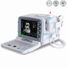 Ysb2000g Full Digital Portable Ultrasound Machine