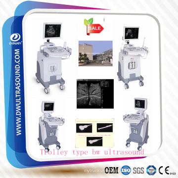 Máquina de ultrasonido y precio de la máquina de ultrasonido DW370 para el embarazo