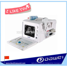 preiswerteste tragbare Ultraschallmaschine & bw Ultraschall-Scanner für Geburtshilfe, Gynäkologie