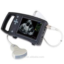DW-S650 veterinario escáner de ultrasonido portátil, ultrasonido embarazo vaca