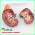 KIDNEY04 (12433) Modelo anatômico renal em tamanho natural em 2 partes