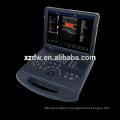 портативный доплеровский ультразвуковой машины & портативный блок развертки ультразвука doppler цвета