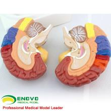 BRAIN11 (12409) Anatomia Médica Avançada 2-Partes Transversais Humano Modelo Médico do Cérebro, Modelos de Anatomia> Modelos Cerebrais