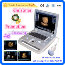 Weihnachtsförderung !! CU18-I Neuer fortgeschrittener 4D tragbarer Ultraschallmaschinenpreis