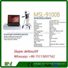 MSL9100B-Ein preiswertestes digitales elektronisches Colposcope mit Dell Marke Laptop / Video-Colposcope für Vagina