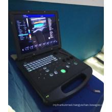 3D fetal color doppler ultrasonic machine portable fetal doppler ultrasound