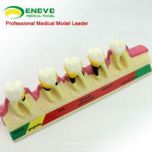 TOOTH09 (12585) Modelos de enfermedad periodontal crónica