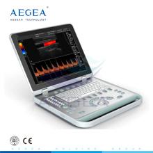 AG-BU005 Krankenhaus nebook Doppler-Modell B-Typ Ultraschall-Scanner